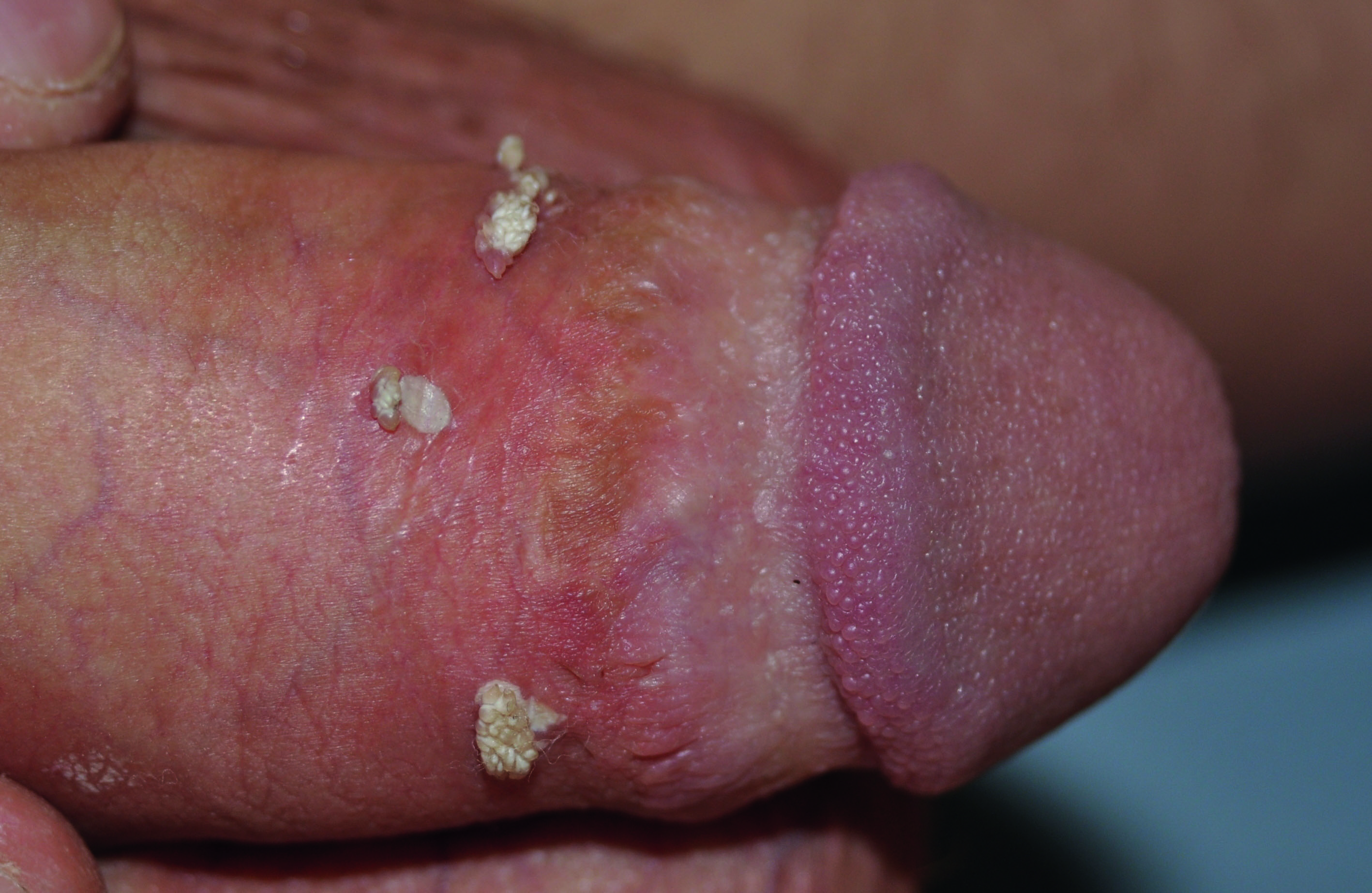 22a Keratinised warts on dry foreskin even in circumsised patient.