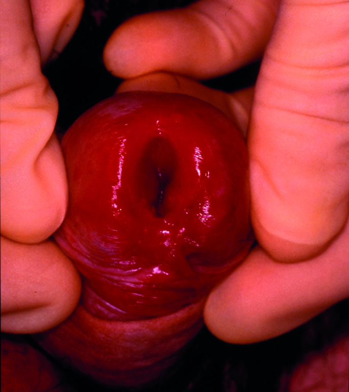 27a inflamed meatus after Imiquimod self treatment
