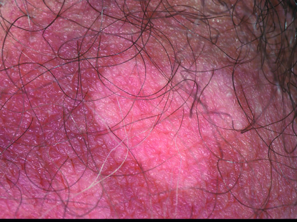 79 Depigmentation is permamanent, note even hair depigmented 2 year later.