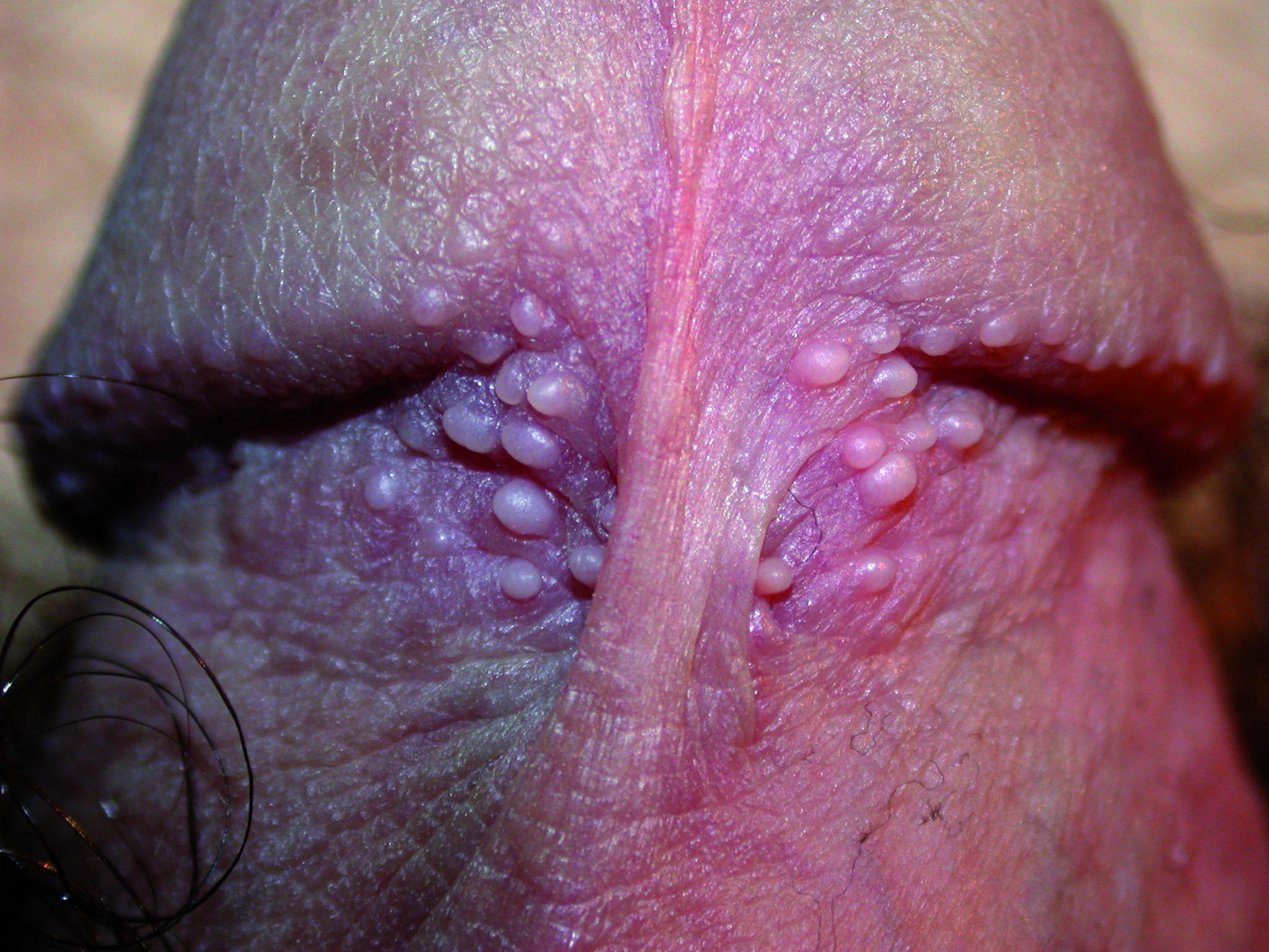 Fig 02. parafrenularA glands