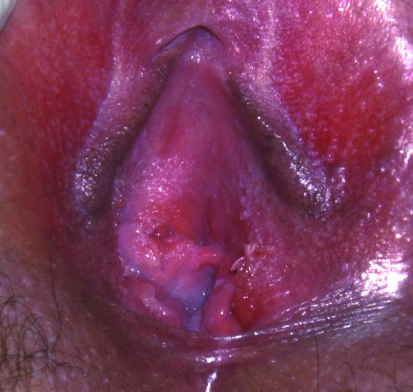Fig 09. vestibular glands close up