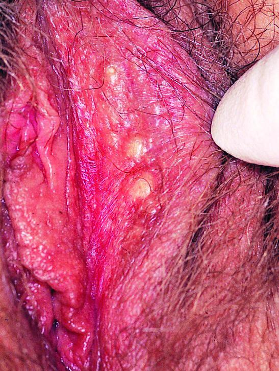 Fig 10. sebaceous cyst female