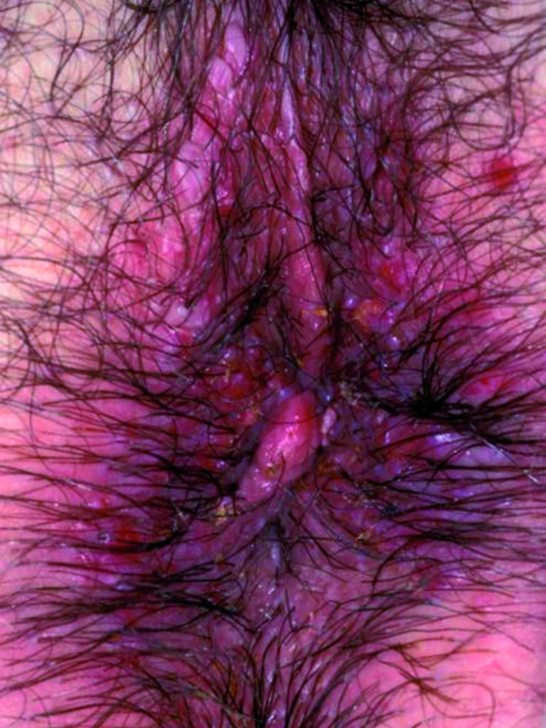 Fig 37. anal warts carpet post Rx