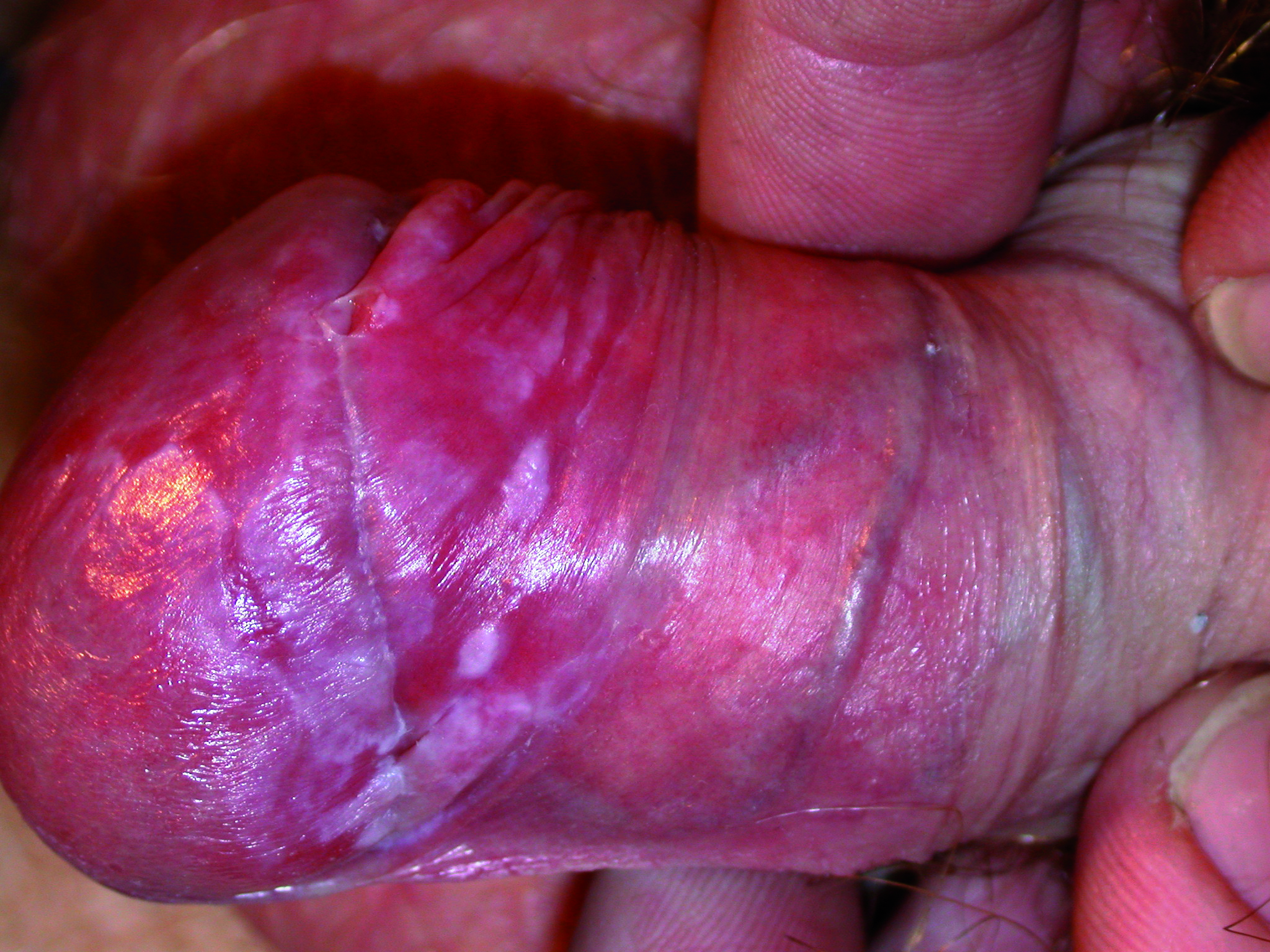 Fig 61. case 5 lichen planus week 3 Aldara
