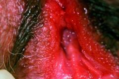 Fig 08. Vestibular papillae