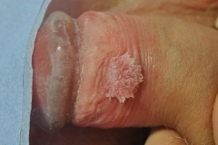Wart pre treatment