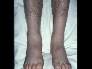 Pain and swelling of  right foot and shin