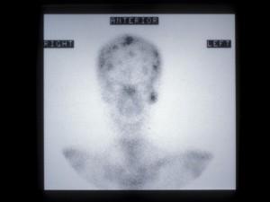 Isotope bone scan 9technetium 99m methylene diphosphon