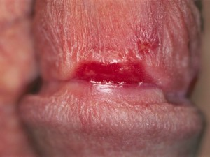Primary syphilis after 1 week of hydrocortisone