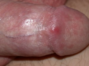 Completely healed glans penis 2 weeks later