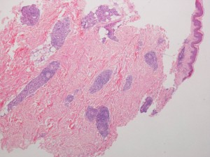 Skin biopsy showing extensive perivascular cuffing, bot