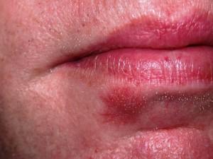 Healed ulcer within i week of treatment.