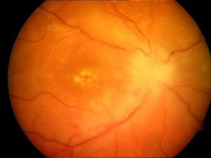 Fundoscopy showing disc swelling, macular deposits