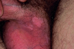 78 Small patch of depigmentation post imiquimod therapy to shaft warts