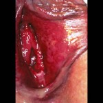 Fig 2b. Extensive vulvitis detail showing confluent ulceration