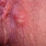 Fig 8a. Small soft herpetic blisters prior to swab taking