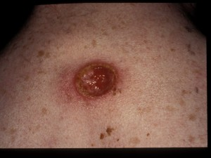 Large punched out interscapular ulcer