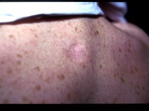 Healed ulcer
