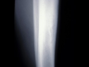 Plain X Ray of right tibia showing a sequestrum