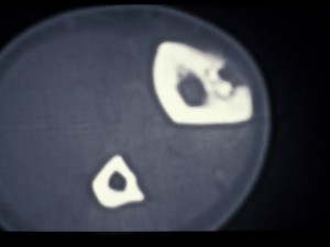 CT scan on right tibia showing defect and sequestrum