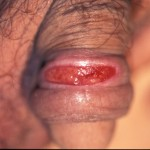 Primary syphilis after 3 days treatment