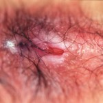 Primary anal fissure