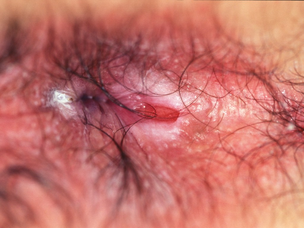 picture of anal fissures