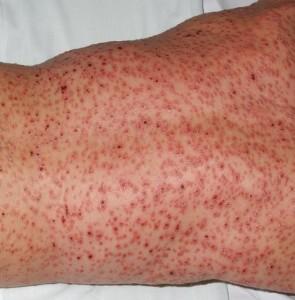 Papular, macular and pustular rash of varying degrees o