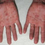 More typical rash on palms