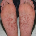 Rash on soles of feet