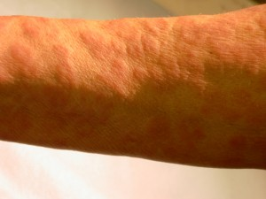Secondary syphilis rash in incident light showing a pap