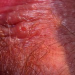 Herpes one tiny recurrence close up